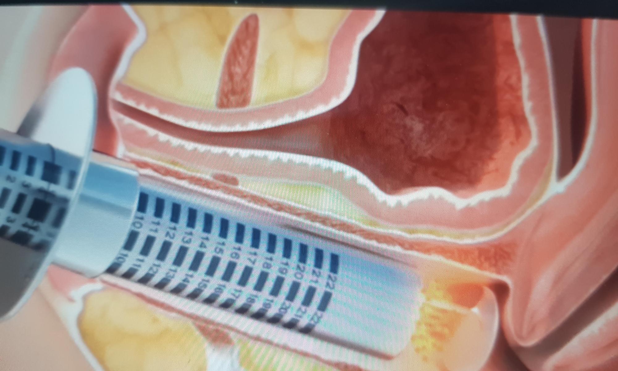 Lazerle Vajina Daraltma